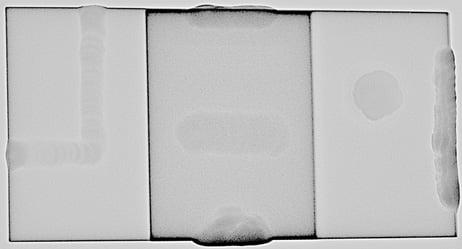 Defectograma